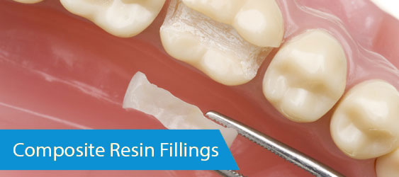 Composite-Resin-Fillings