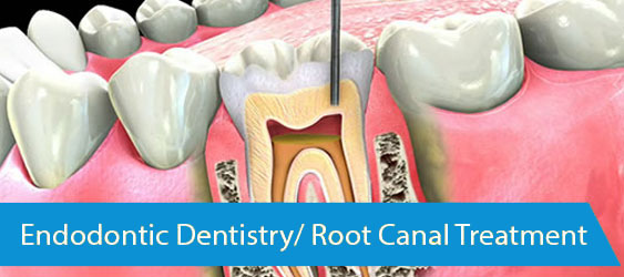 Endodontic-Dentistry-Root-Canal-Treatment