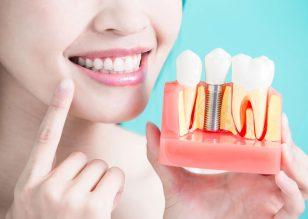 Dentures Vs Dental implants in Davao City