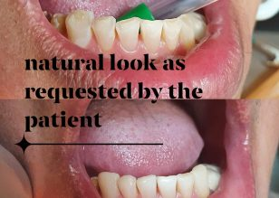 Dental Attrition ..is a form of dental wear caused by tooth to tooth contact. T…