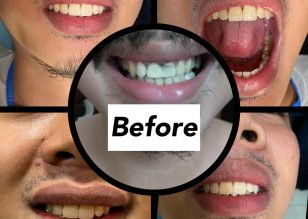 Full Anatomic Zirconia Crowns Thank you so much for trusting us ***** Halasa…